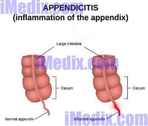 appendicitis symptoms